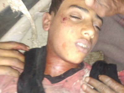 A Houthi sniper kills a child in Erim, Lahj Governorate